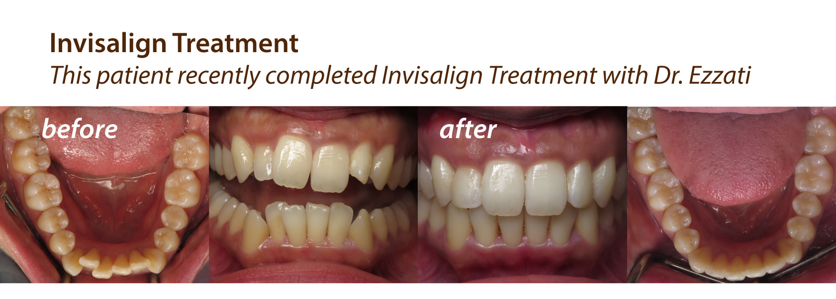Before & After Invisalign at Olympic Village Dental