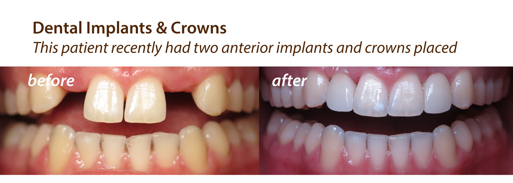 Before and After Implants & Crowns at Olympic Village Dental